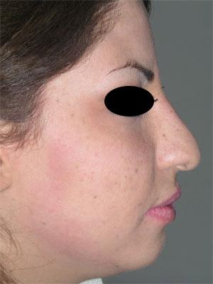 نمونه Chin cosmetic surgery کد 60