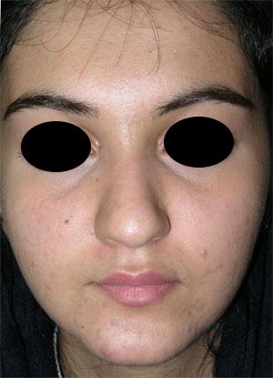 نمونه Cosmetic nose surgery کد 60