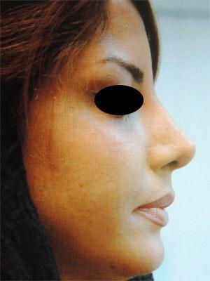 نمونه Chin cosmetic surgery کد 61
