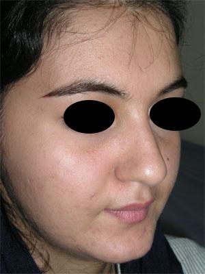 نمونه Cosmetic nose surgery کد 61
