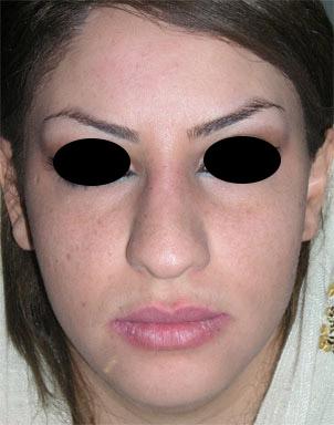 نمونه Chin cosmetic surgery کد 62
