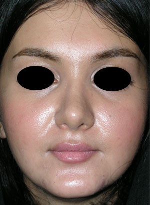 نمونه nose surgery gallery کد 62