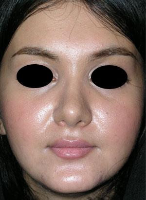 نمونه Cosmetic nose surgery کد 62