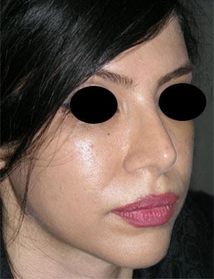 نمونه Chin cosmetic surgery کد 63