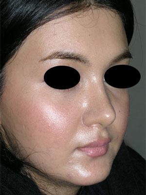 نمونه Cosmetic nose surgery کد 63