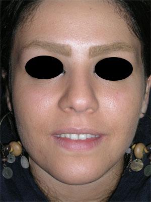 نمونه Cosmetic nose surgery کد 64