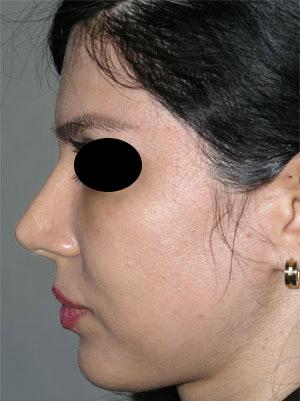 نمونه Chin cosmetic surgery کد 65
