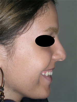 نمونه Cosmetic nose surgery کد 65