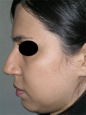 نمونه Chin cosmetic surgery کد 66