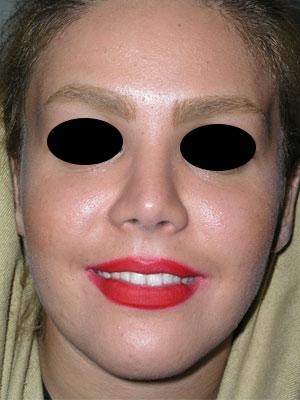 نمونه Cosmetic nose surgery کد 66