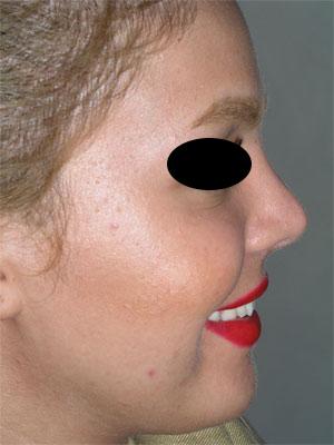 نمونه Cosmetic nose surgery کد 67
