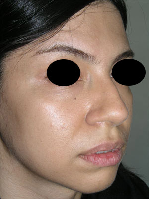نمونه Chin cosmetic surgery کد 68