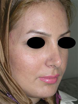 نمونه Chin cosmetic surgery کد 7