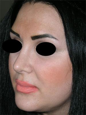نمونه Cosmetic nose surgery کد 7
