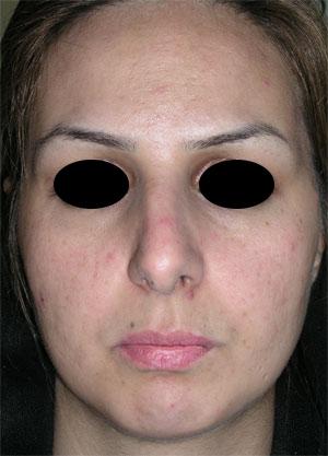 نمونه Chin cosmetic surgery کد 8