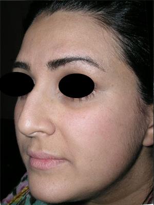 نمونه Cosmetic nose surgery کد 8