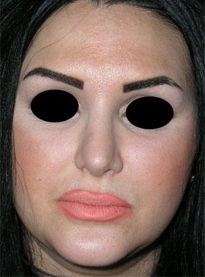 نمونه nose surgery gallery کد 9