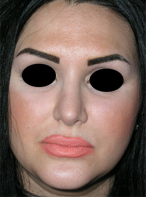 نمونه Cosmetic nose surgery کد 9