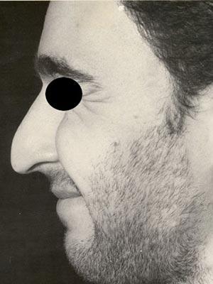 نمونه nose surgery gallery کد m1