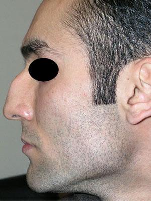 نمونه nose surgery gallery کد m11