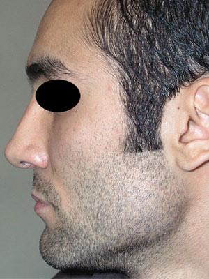 نمونه nose surgery gallery کد m12