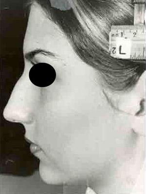 نمونه nose surgery gallery کد m13