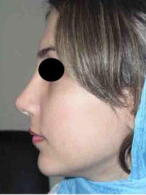نمونه nose surgery gallery کد m14