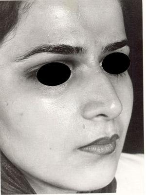 نمونه nose surgery gallery کد m15