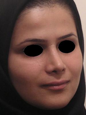 نمونه nose surgery gallery کد m16