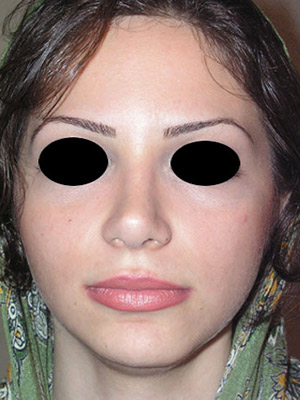 نمونه nose surgery gallery کد m18