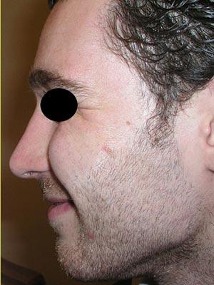 نمونه nose surgery gallery کد m2