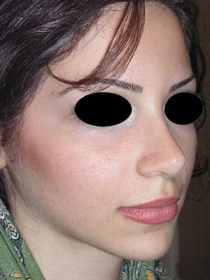 نمونه nose surgery gallery کد m20