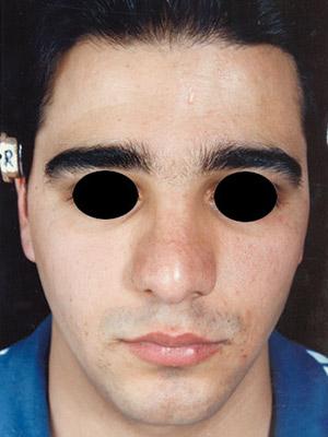 نمونه nose surgery gallery کد m23