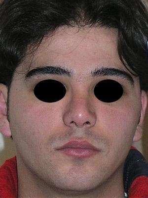 نمونه nose surgery gallery کد m24