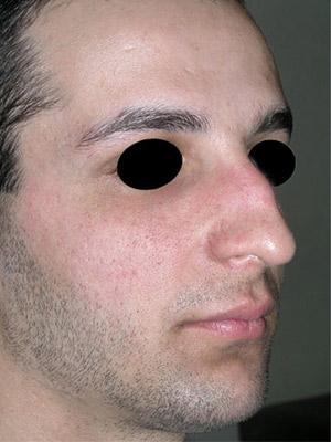 نمونه nose surgery gallery کد m25