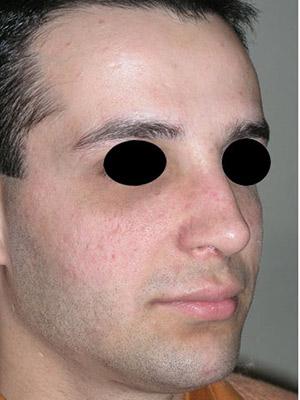 نمونه nose surgery gallery کد m26