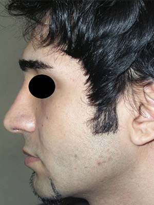 نمونه nose surgery gallery کد m28