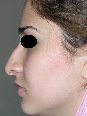نمونه nose surgery gallery کد m3