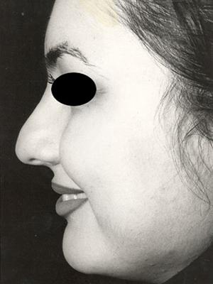 نمونه nose surgery gallery کد m31
