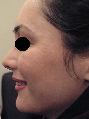 نمونه nose surgery gallery کد m32