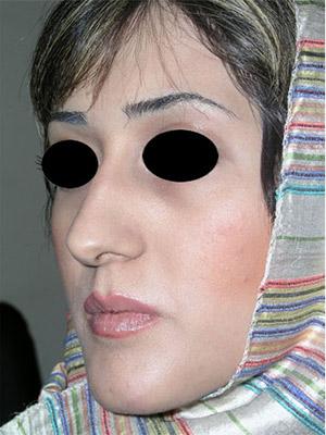 نمونه nose surgery gallery کد m33