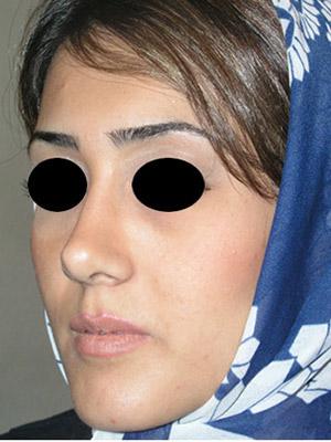 نمونه nose surgery gallery کد m34