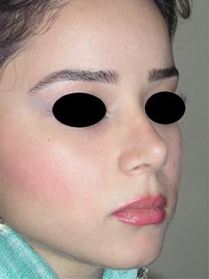 نمونه nose surgery gallery کد m36