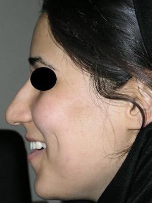 نمونه nose surgery gallery کد m37
