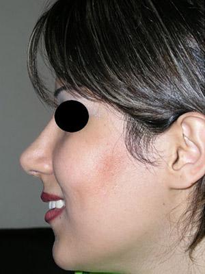 نمونه nose surgery gallery کد m38