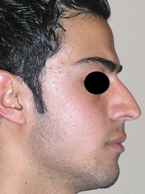 نمونه nose surgery gallery کد m39