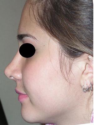 نمونه nose surgery gallery کد m4