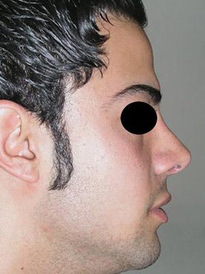 نمونه nose surgery gallery کد m40