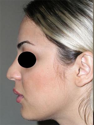 نمونه nose surgery gallery کد m41