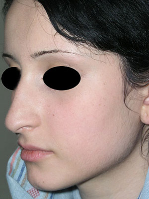 نمونه nose surgery gallery کد m47